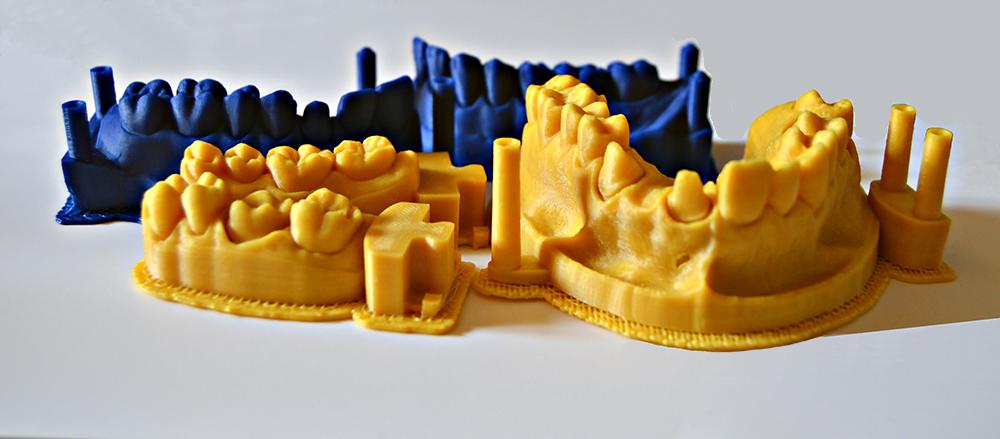 dental 3d printer prototipazione settore dentale fdm