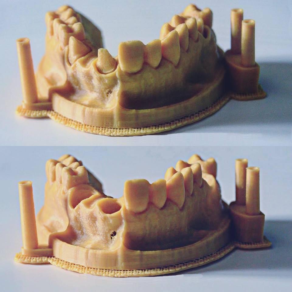 stampante 3d dentale arcata dentale prototipazione rapida
