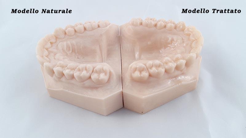 stampante 3d fdm ortodonzia dental 3dprinter